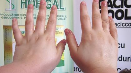 Ai mâinile umflate în fiecare dimineață? Sănătatea ta e în PERICOL! Mergi URGENT la doctor